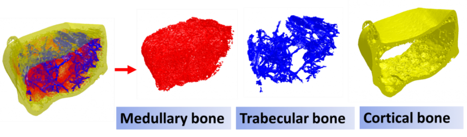3-D rendering showing medullary, trabecular and cortical bone separated out