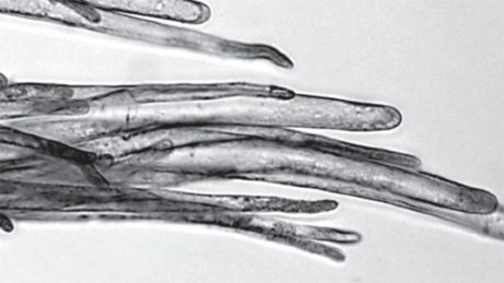 A black and white microscopic image of a bunch of finger-like cotton fibers.